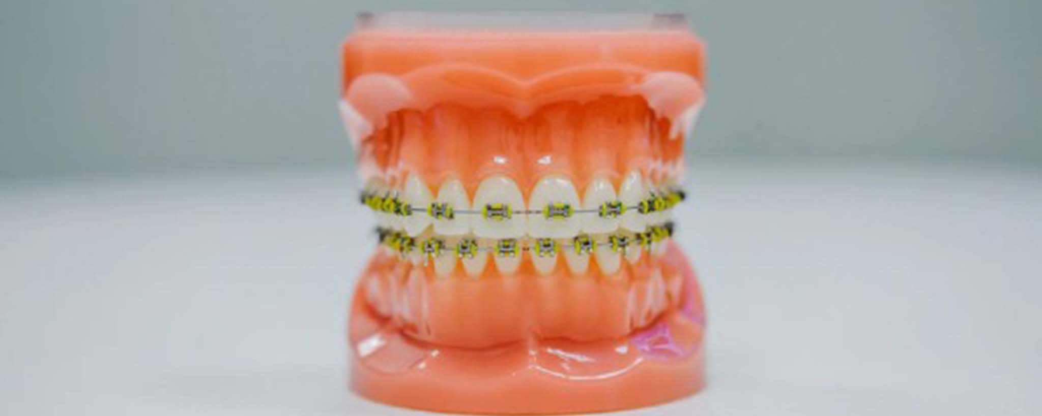 What Do I Do If My Teeth Shift After Braces?